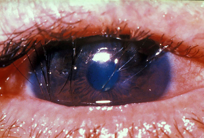 Close up image of an eye with eyelashes turning in towards the cornea