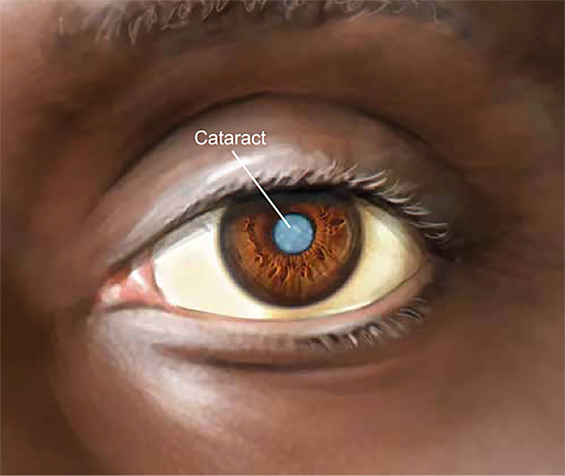 Drawing of eye to illustrate cataract
