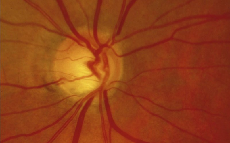 Glaucomatous optic neuropathy: splinter haemorrhages.© R Bourne