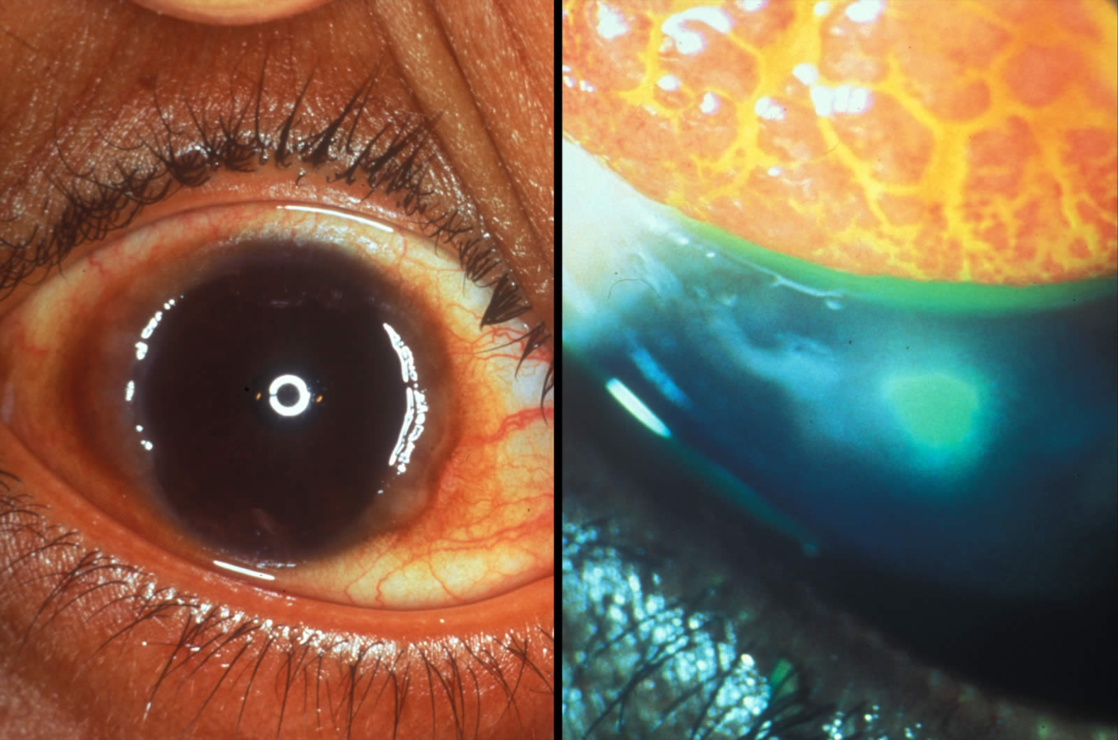 atopic keratoconjunctivitis images of christmas