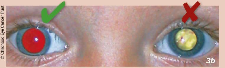 ретинобластома диагностика