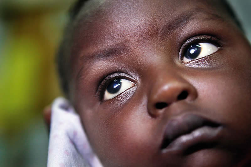 A young child with bilateral cataract. TANZANIA. © CCBRT/Dieter Telemans