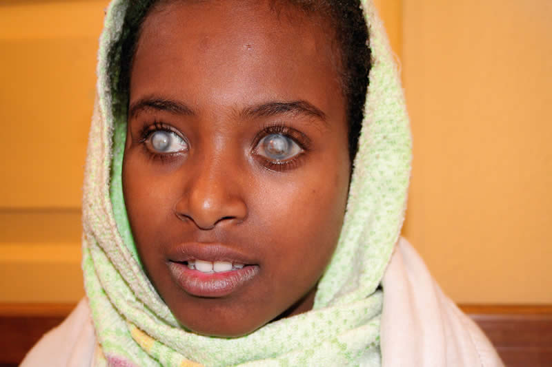 Corneal blindness often affects people at a young age, such as this twelve year old girl who is blind from vitamin A deficiency. She has had a penetrating corneal graft in her left eye; this has unfortunately failed. ETHIOPIA. © Lance Bellers