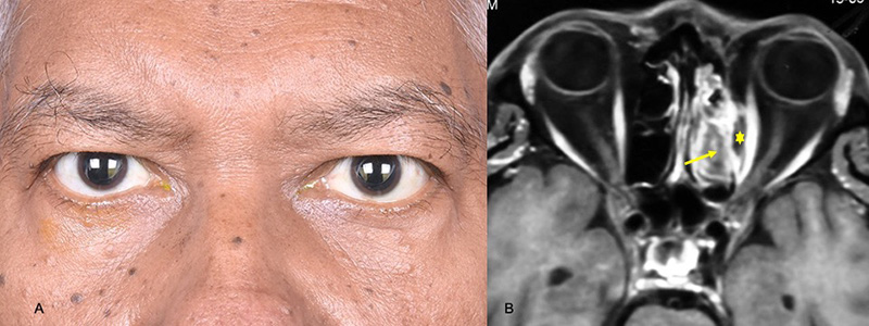 Two images side by side. On the left is a photograph of both eyes of a male patient. On the right, an MRI image