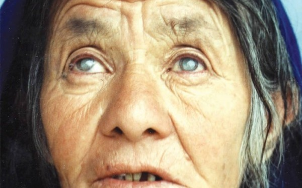 Cataract has remained the major cause of blindness worldwide for the past 20 years. AFGHANISTAN. © MM Farrahmand