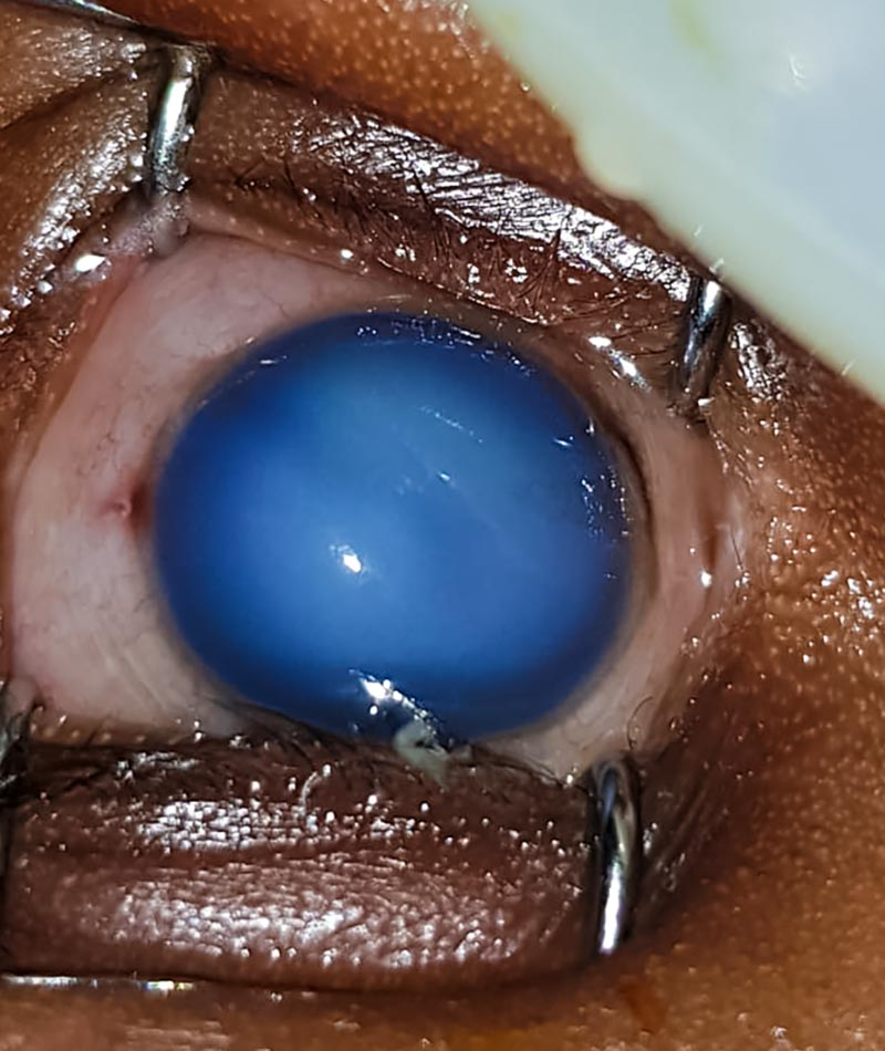 Close up image of damaged eye with hazy cornea