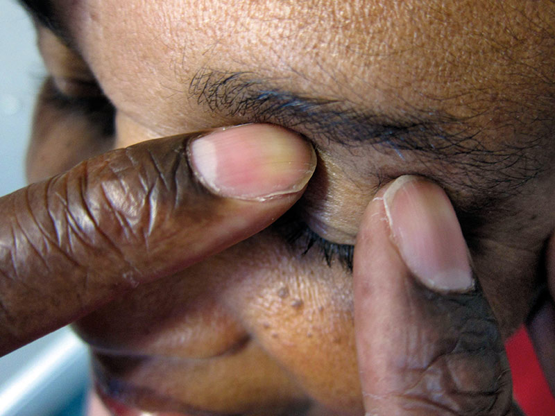 applying gentle pressure to the eyelid using two fingers