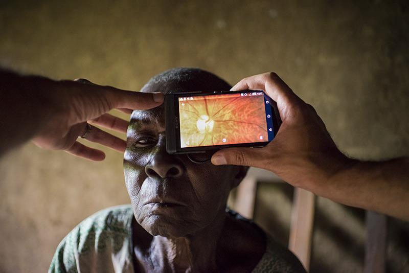 Photographie rétinienne prise durant un essai pilote de l'application Peek Retina pour téléphone portable. KENYA
