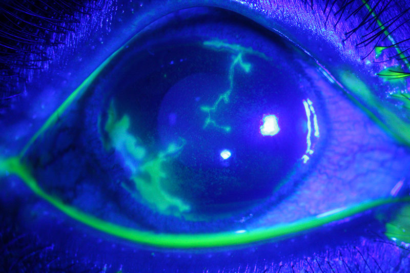 Close up image of a fluorescein stained eye with viral infection
