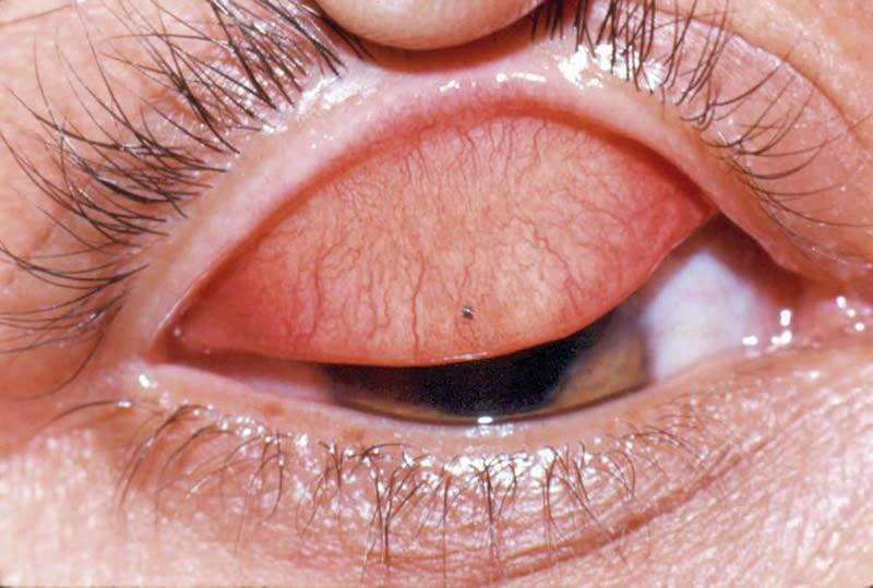 peau epaisse sur l iris de l oeil