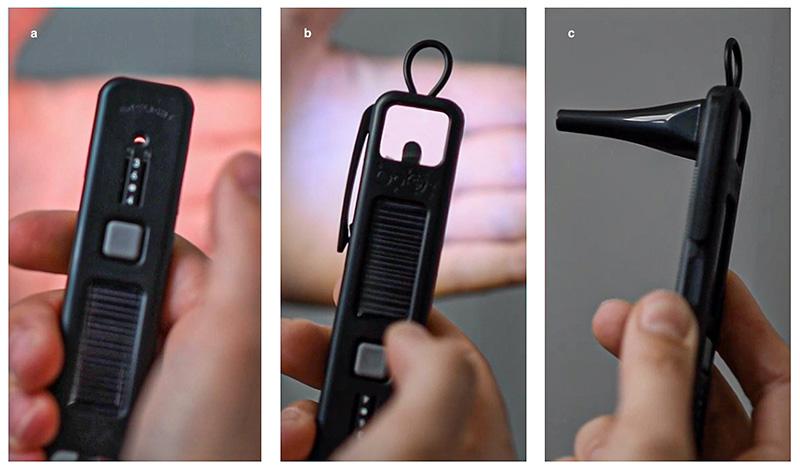 Trois images distinctes montrant une main tenant l'ophtalmoscope Arclight avec des embouts différents : (a) L'ophtalmoscope Arclight lorsqu'il est utilisé comme ophtalmoscope direct. (b) L'ophtalmoscope Arclight lorsqu'il est utilisé comme loupe pour l'examen du segment antérieur. (c) L'ophtalmoscope Arclight avec l'embout servant d'otoscope.