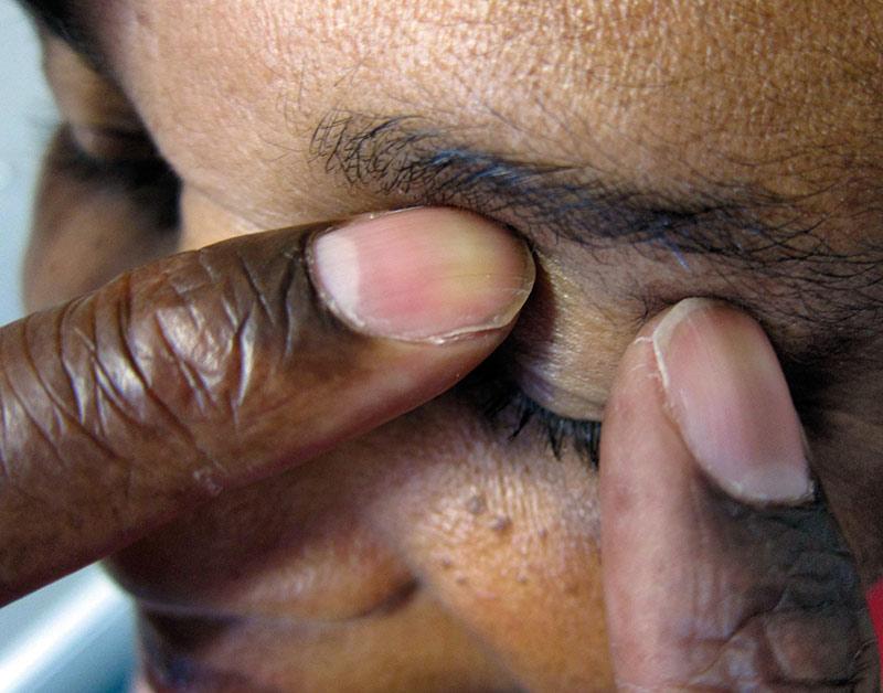 Gros plan du visage d'un patient, et de la main d'un agent de santé qui palpe l'œil fermé avec deux doigts pour évaluer la pression intraoculaire.