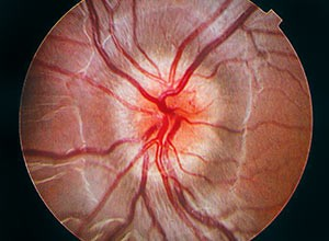 Community Eye Health Journal » Red flags in neuro-ophthalmology