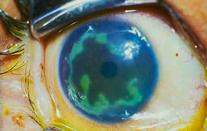 Close up image of the front of the eye - stained with fluorescein