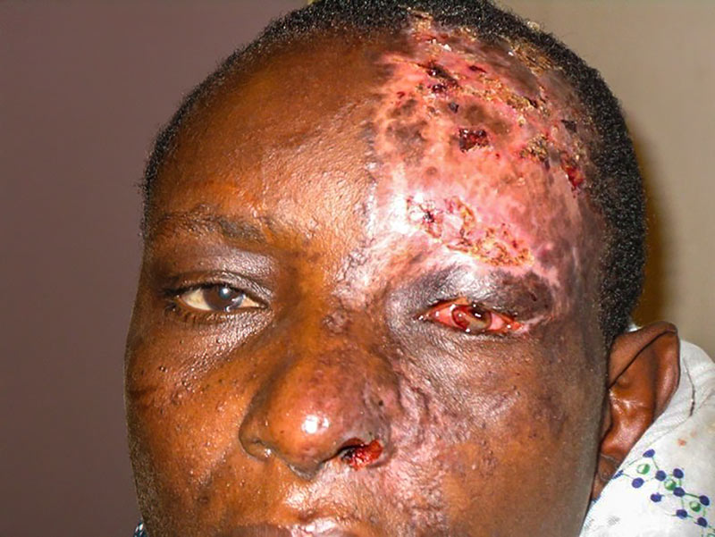Close up of a person's face showing damage to the skin and corneal infection