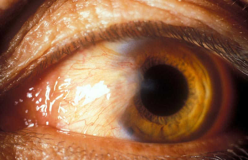 Growth of tissue on the white of the eye