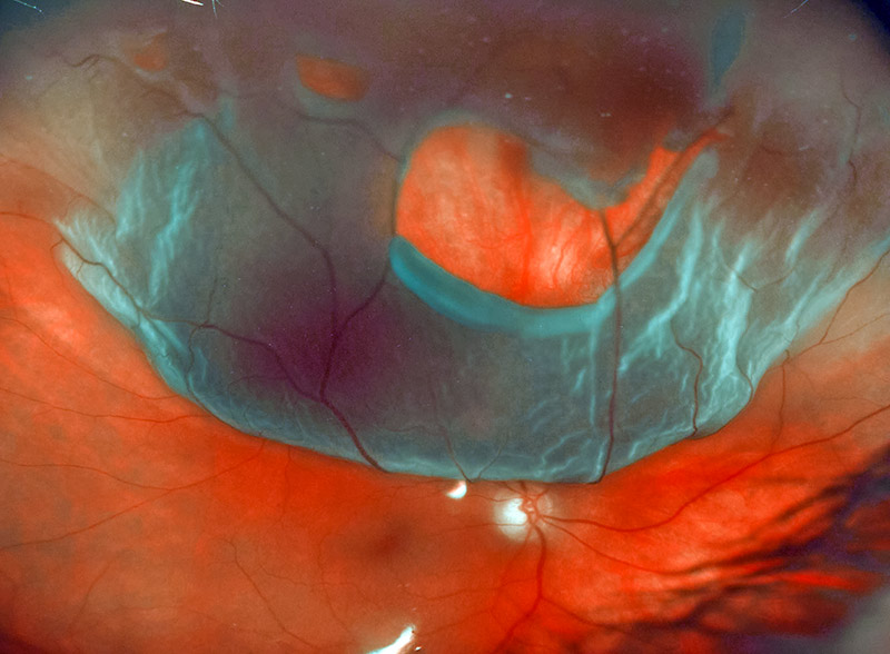 Image of detached retina