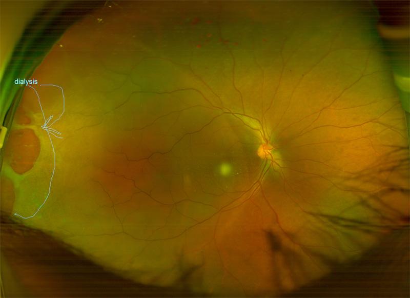 Close up retinal image