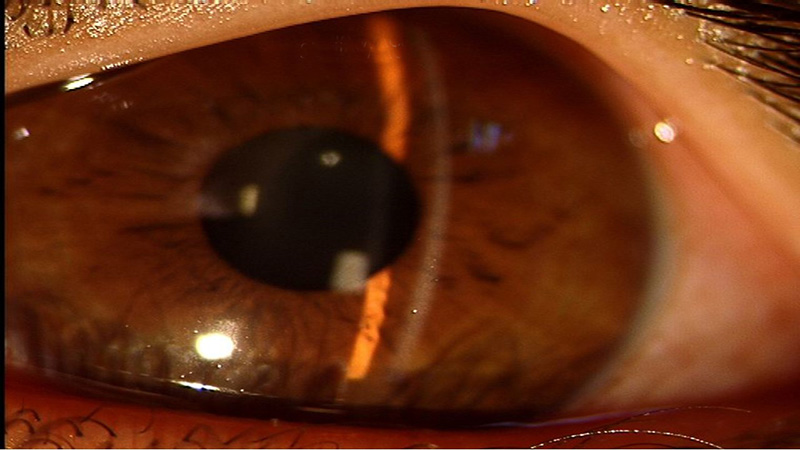 close up image of an eye affected by glaucoma