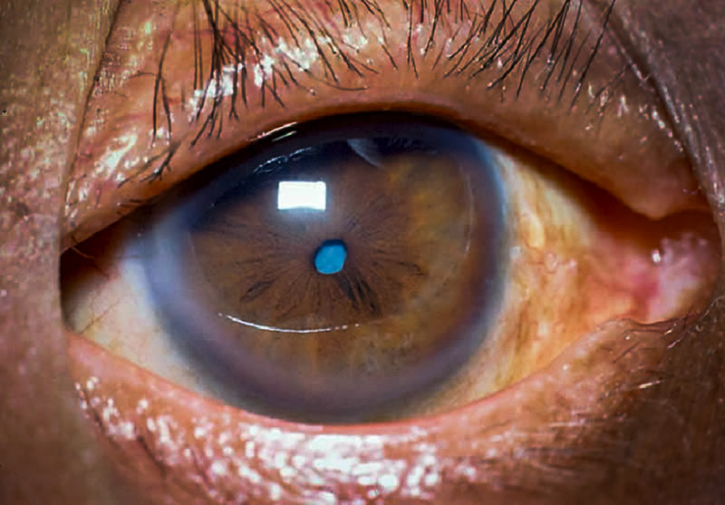 Community Eye Health Journal Management Of Cataract