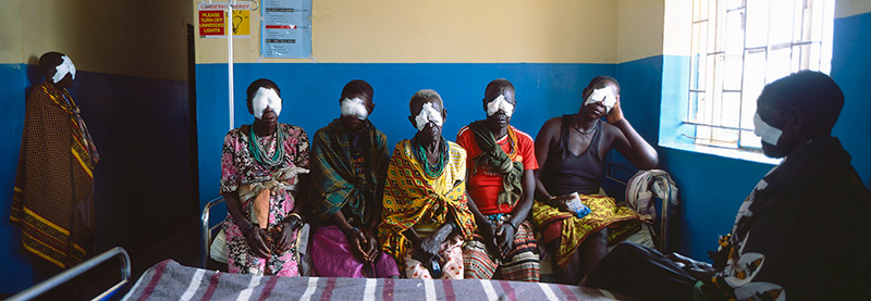 Six post-operative cataract patients, five sitting down and 1 standing, all with eye patches