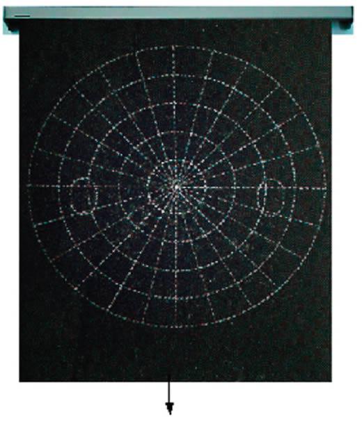 Revue de Santé Oculaire Communautaire » Examen du champ visuel et ... Figure 6. Écran de Bjerrum. Les campimètres de ce type sont utiles pour  explorer