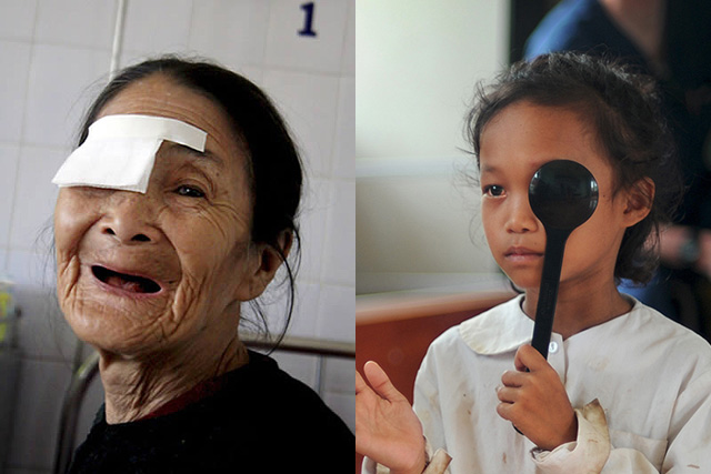 Older woman and young girl receiving eye care services