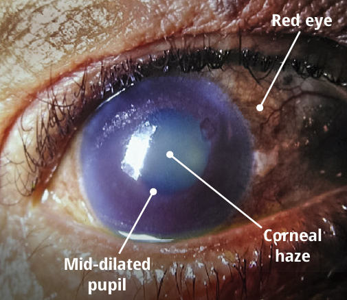 Close up of the eye with labelling