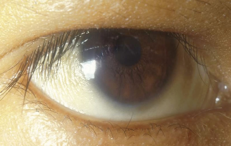 Community Eye Health Journal 187 The Eye Signs Of Vitamin A
