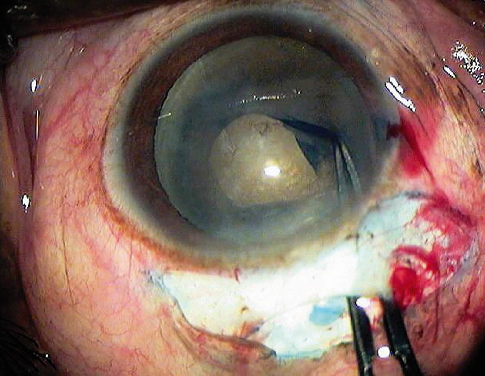 hyphema oeil ophtalmologue