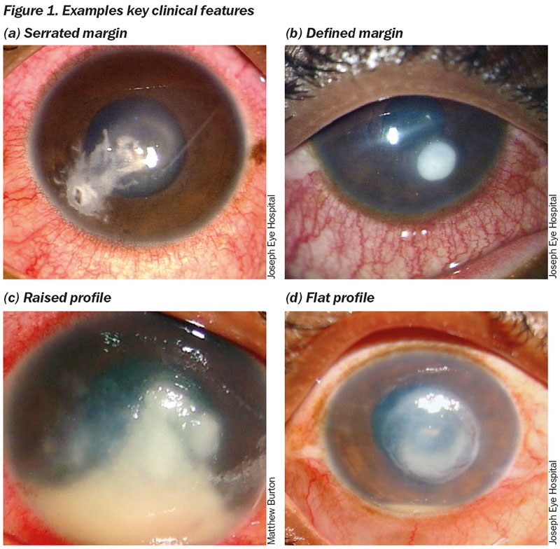 herpes simplex keratitis and steroids