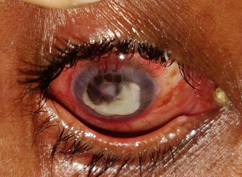Close-up image of the affected eye