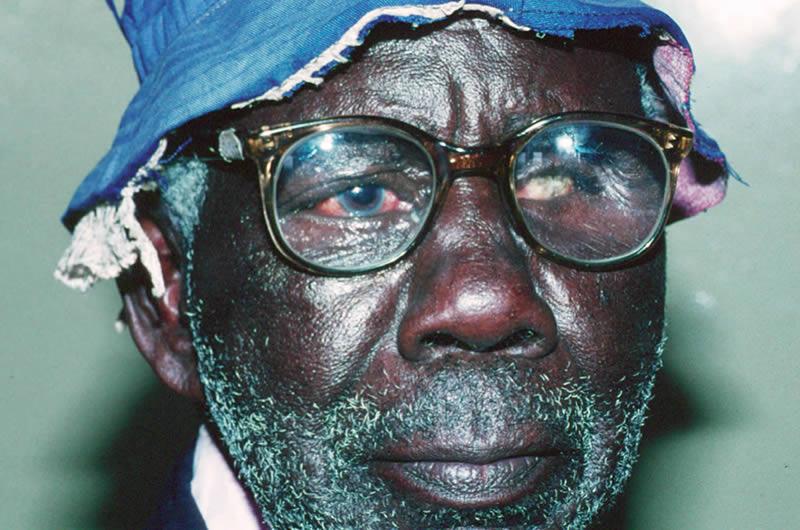 Lunettes aphatiques pour un patient monoculaire en Ouganda. Murray McGavin