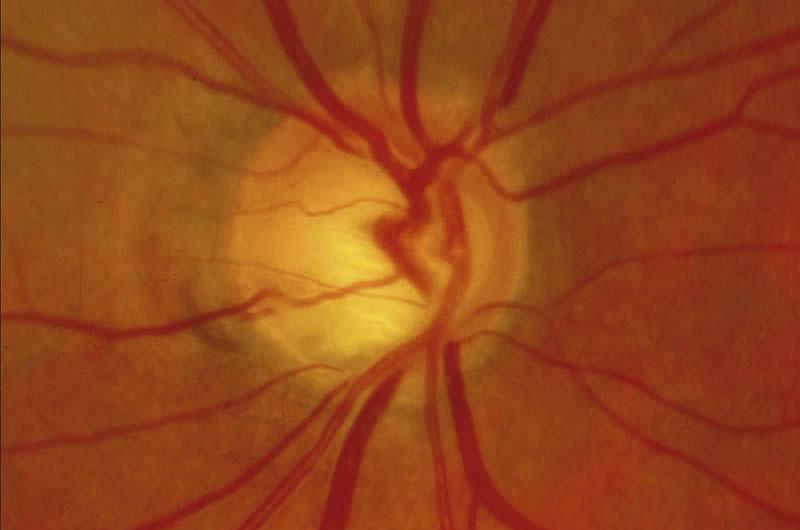Neuropathie optique glaucomateuse : hémorragie en flammèche. R Bourne